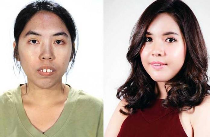 หลิน วงศ์ตะวัน Let me in Thailand ศัลยกรรมพลิกชีวิต คนแรกของประเทศไทย