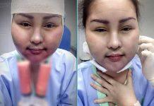 หญิงลี ศรีจุมพล ยอมเจ็บให้หมอดูดไขมันออกจากหน้า